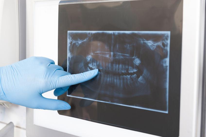 L'importanza della radiografia in odontoiatria conservativa