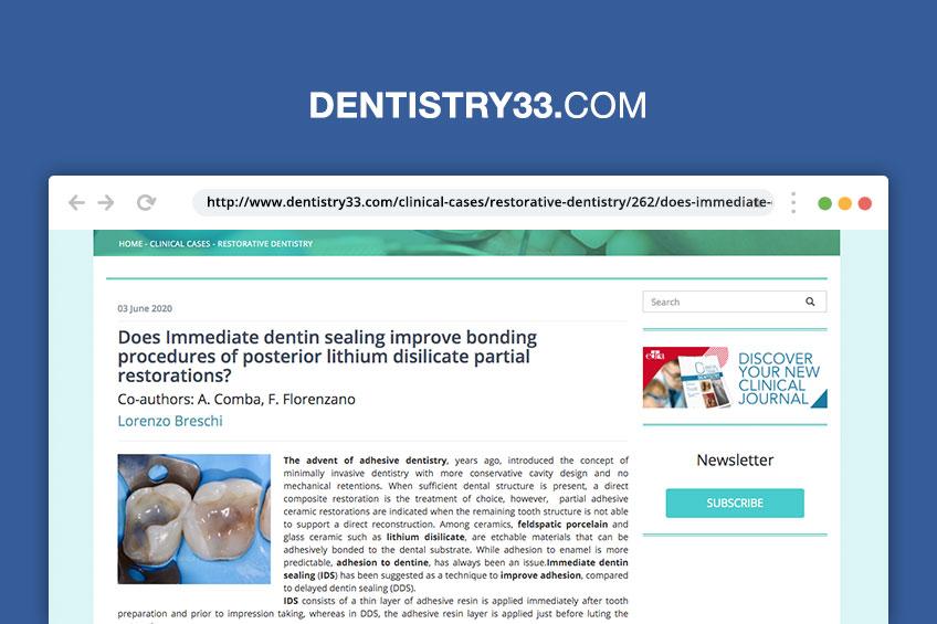 Sigillatura immediata della dentina: migliora o no le procedure di incollaggio dei restauri adesivi parziali in ceramica? [Rassegna stampa]